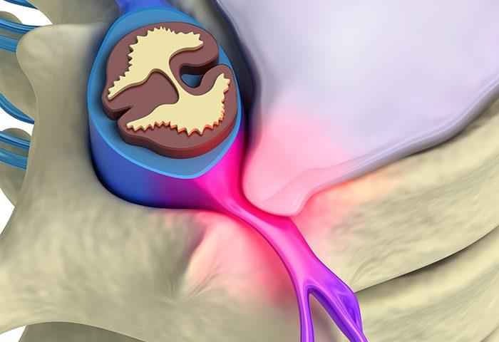 disc herniation